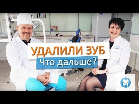 Удалили зуб: Что делать после удаления зуба. Стоматология в Новосибирске