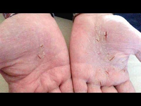 Galokamera les rappels au psoriasis
