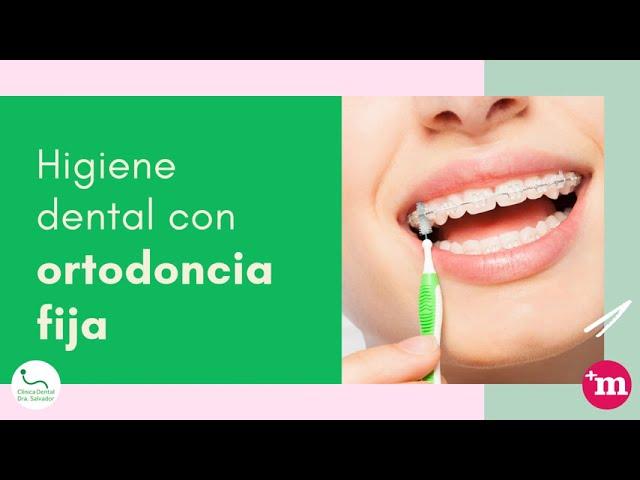 Higiene dental por tipo de ortodoncia - Doctora María Isabel Salvador Martínez