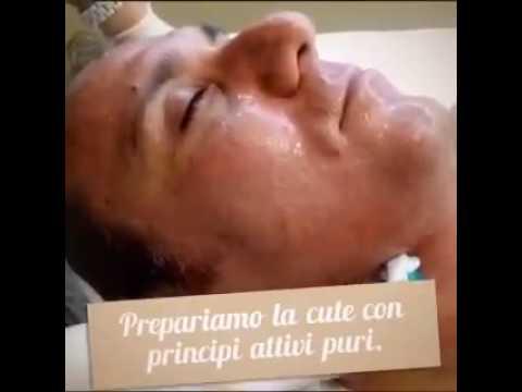 Trattamento sanatorio per la prostata