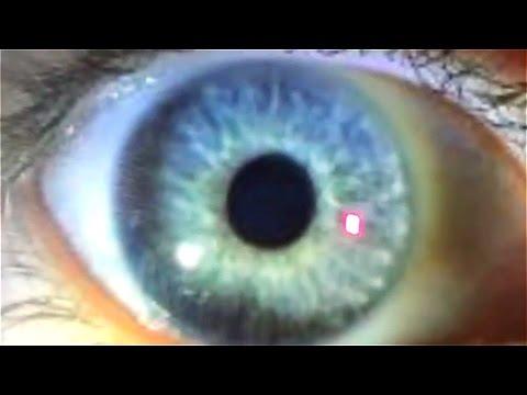 Lépilage laser de la personne kazan