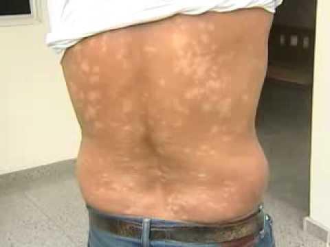Que sintomas em eczema
