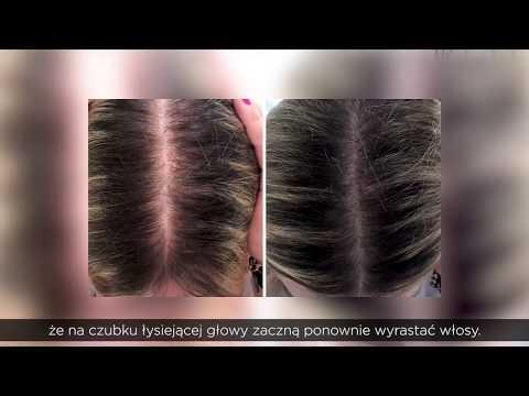 Jakie leki wziąć na hairloss