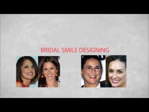 Bridal smile designing service at dental specialist in coimbatore