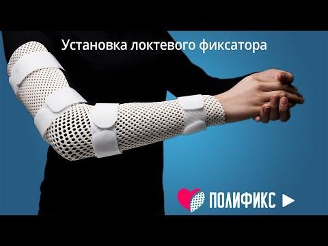 ФИКСАТОР ЛОКТЕВОЙ