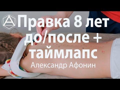 Детская мануальная терапия в 8 лет в Москве: до/после   таймлапс