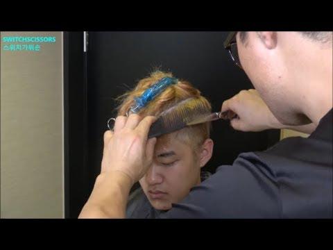 Buhok transplant sa hair line