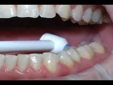 der richtige Einsatz der Munddusche