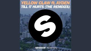 Till It Hurts (feat. Ayden) (Dirtcaps & Tom Bridges Remix)