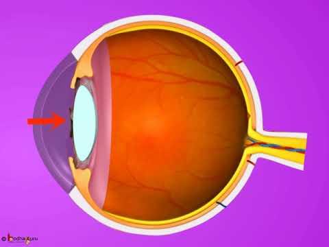 Videó vigyázzon a szemére