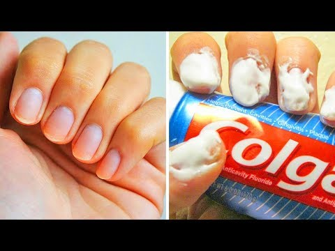 20 EASY HACKS FOR PERFECT NAILS