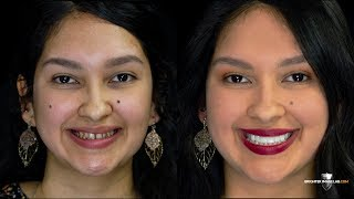 Youtube Video #1 Beauty Hack -- Perfect Smile Makeover without Invisalign or Cosmetic Dentist!