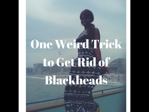 One Weird Trick to Get Rid of Blackheads