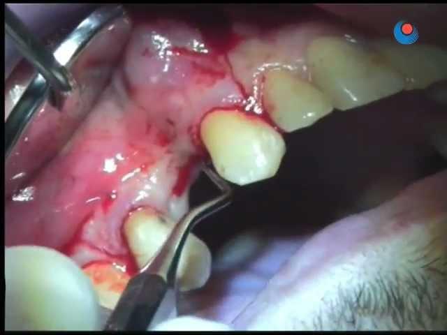 Bone Graft (edentulous area) - 1