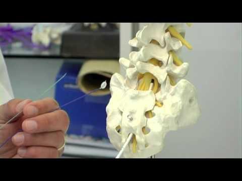 Instabilität der Halswirbelsäule Bilder