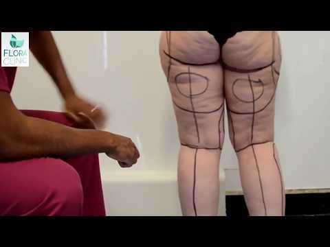 Hangi Liposuction Yöntemi Daha Avantajlıdır?