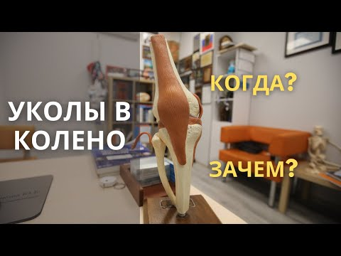 Уколы в колено: гиалуроновая кислота. Артроз