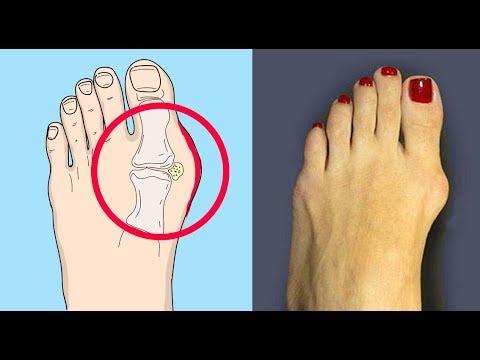 Diagnosticul osteocondrozei genunchiului