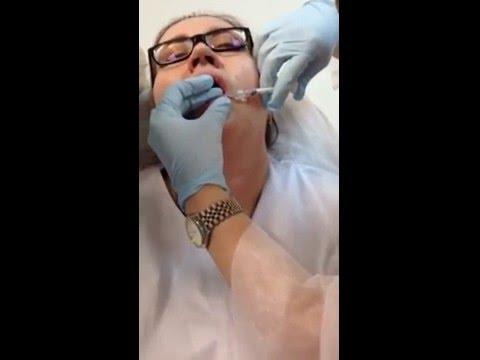 Laser facial resurfacing sa St. Petersburg stock