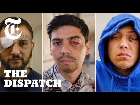 Chilean Police Are Blinding Protesters: We Spoke to the Injured | The Dispatch