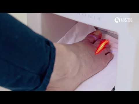 Leczenie deformacji stóp palców u dzieci