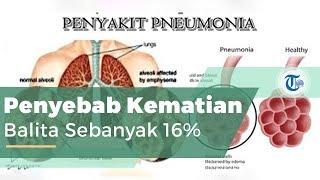 Pneumonia, atau Lebih Dikenal dengan Paru-paru Basah
