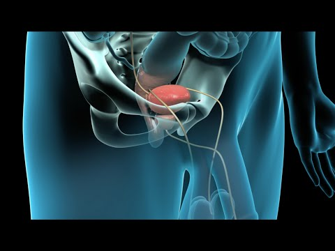How long does the surgery to remove the prostate gland