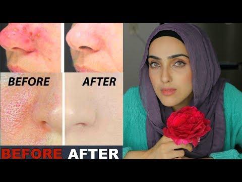 Laser facial tila nanunumbalik ng scars sa Gorno-Altaisk