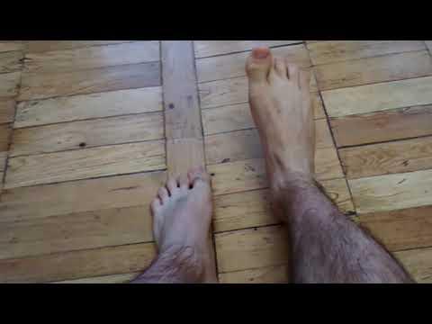 Спустя год после травмы голеностопа