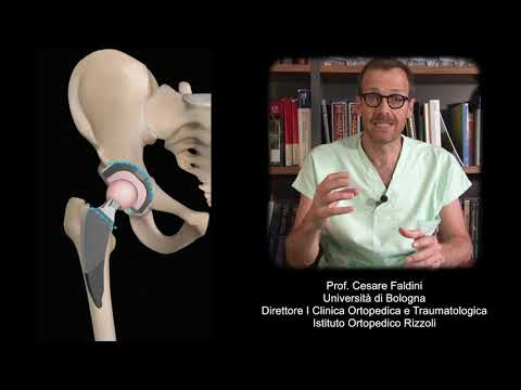 Video di esercizi con osteoartrosi del video spalla