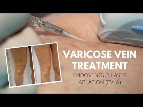 เลเซอร์รักษา varicosis Vitebsk