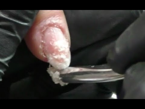 Acrylnägel mit Aceton ablösen | Acrylnägel für Anfänger #36