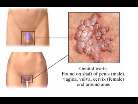 Define genital warts