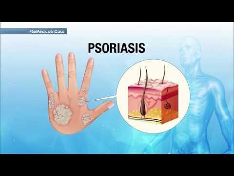El tratamiento de la psoriasis sobre la cabeza a gv