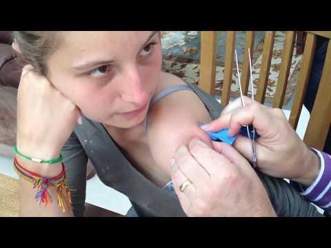 La Roche a uma pose lipikar de dermatite atopic