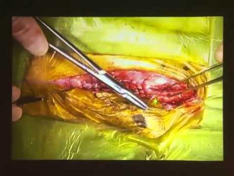 獣医学本・書籍・ビデオ・雑誌・DVD・洋書インターズーオンライン / V-sta アーカイブズ 「膀胱・尿道の外科」
