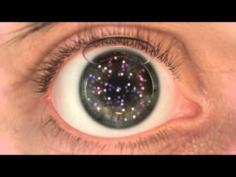 A rossz látás helyreállítása