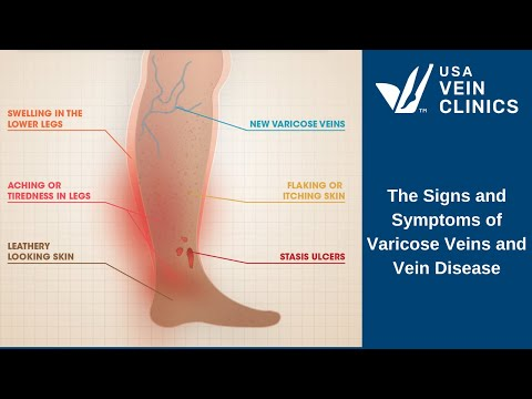 Video What are the signs and symptoms of vein disease and varicose veins?