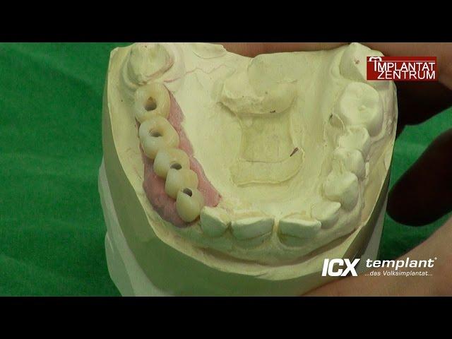 Implantation mit Sofortversorgung im Oberkiefer mit vier ICX-Implantaten. Sofortimplantation