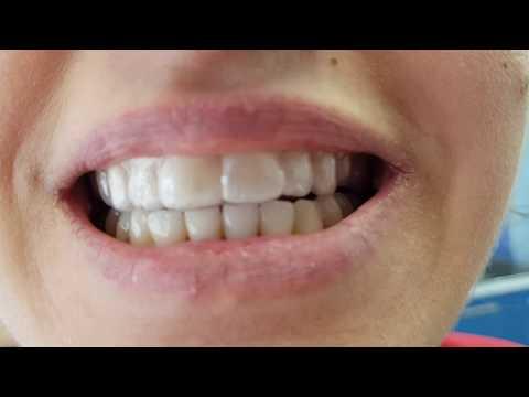 Стоматологические капы, капы от бруксизма (хруст и скрежет челюсти)