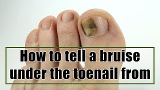 How to tell a bruise under the toenail from toenail fungus