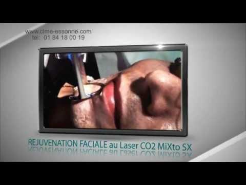 Gerlen akva le masque pour la personne les rappels