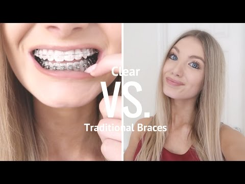 Clear VS Metal Braces   Are Clear Braces Worth It?