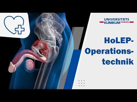 Anzeichen von Hyperplasie und diffusen fokalen Veränderungen der Prostata