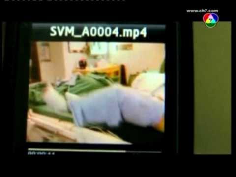 คลินิก Novosibirsk รักษาเส้นเลือดขอด
