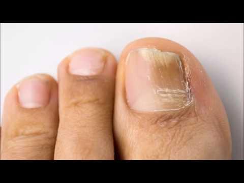 El hongo de las uñas en los pies y las manos los síntomas