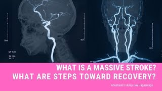 What Is A Massive Stroke?