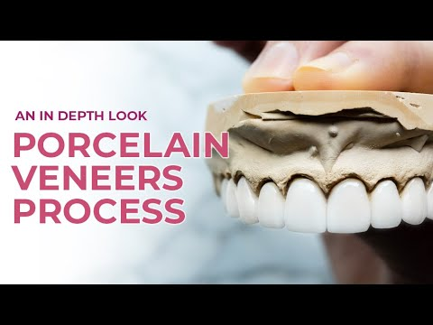 Porcelain Veneers A Dental Boutique Process | An In Depth Look