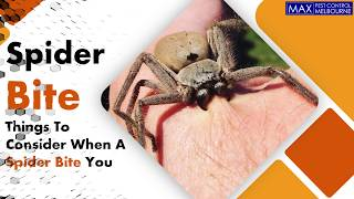 Things To Consider When A Spider Bite You | Spider Control | Max Pest Control
