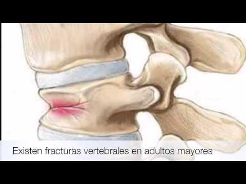 Por eso, cuando se sienta dolor de la cadera